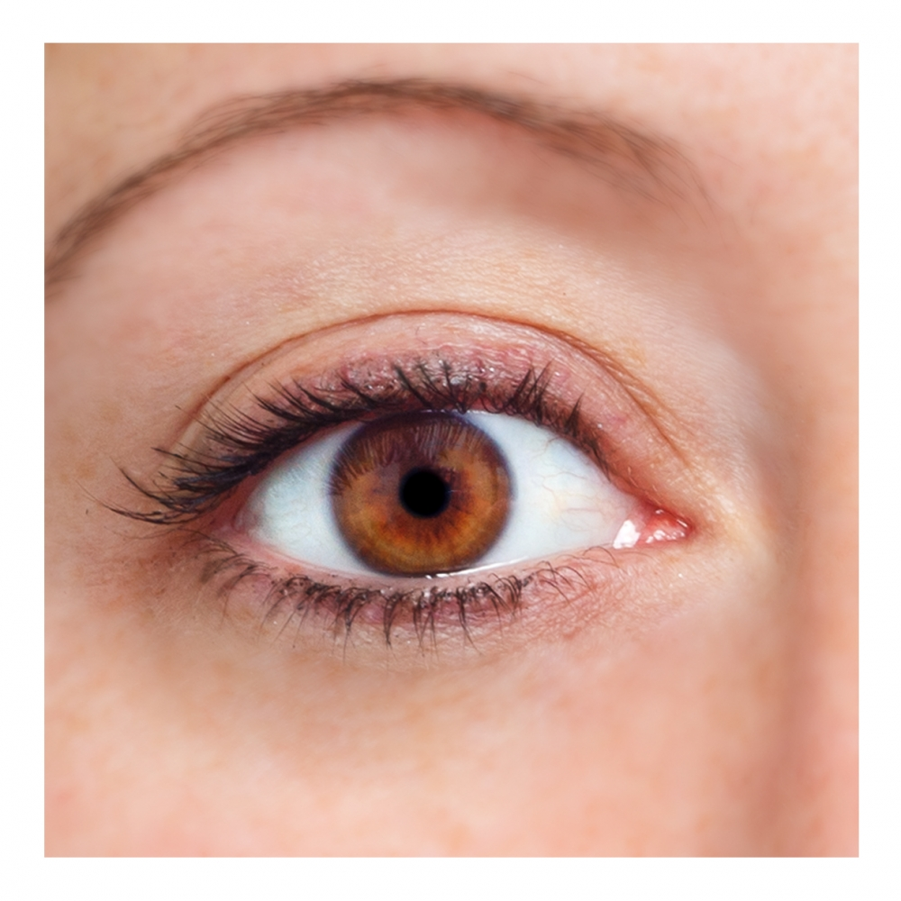 Imagen en la que se ve un ojo
