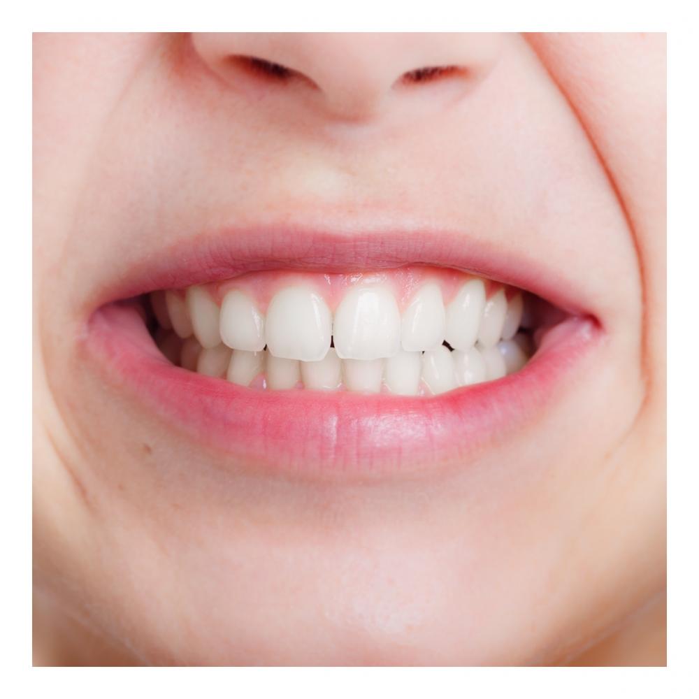 Imagen en la que se ve los dientes de una boca