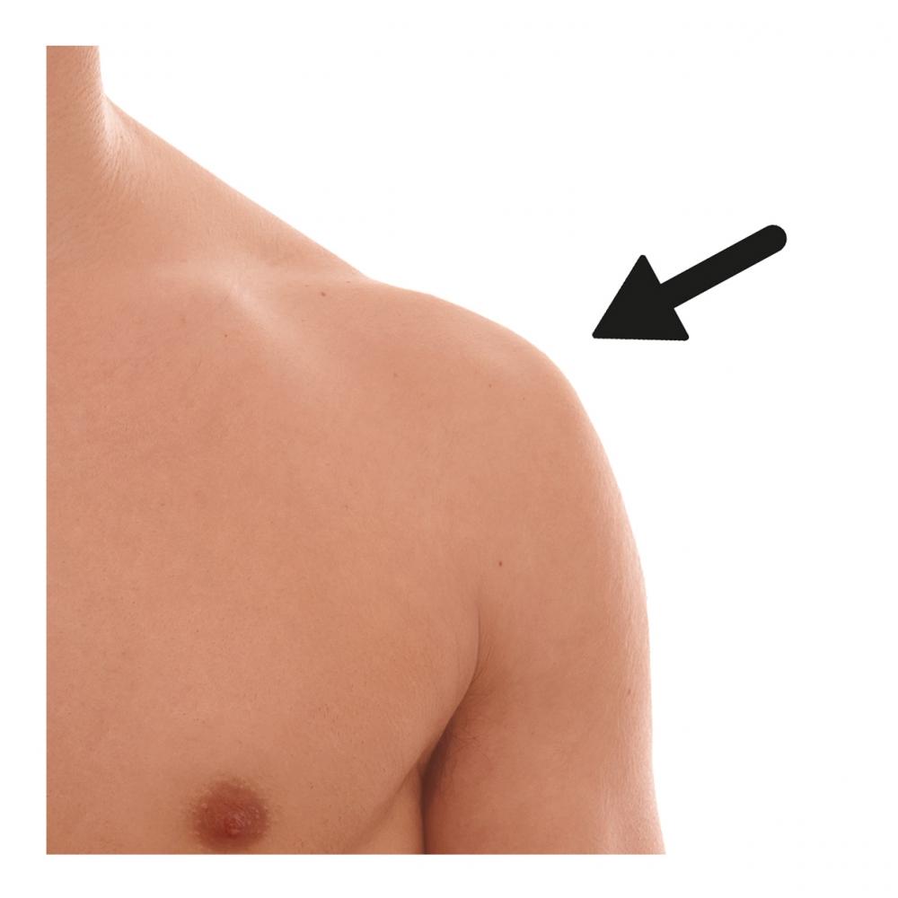 Imagen en la que aparece un hombro del cuerpo humano