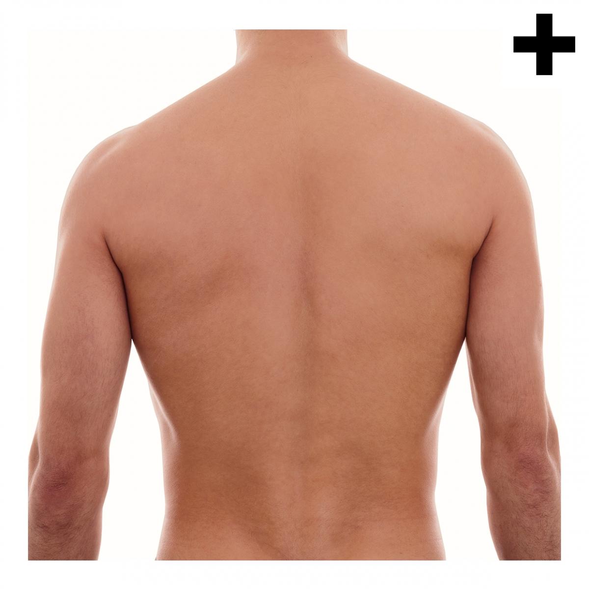 Imagen en la que se ve el plural del concepto espalda