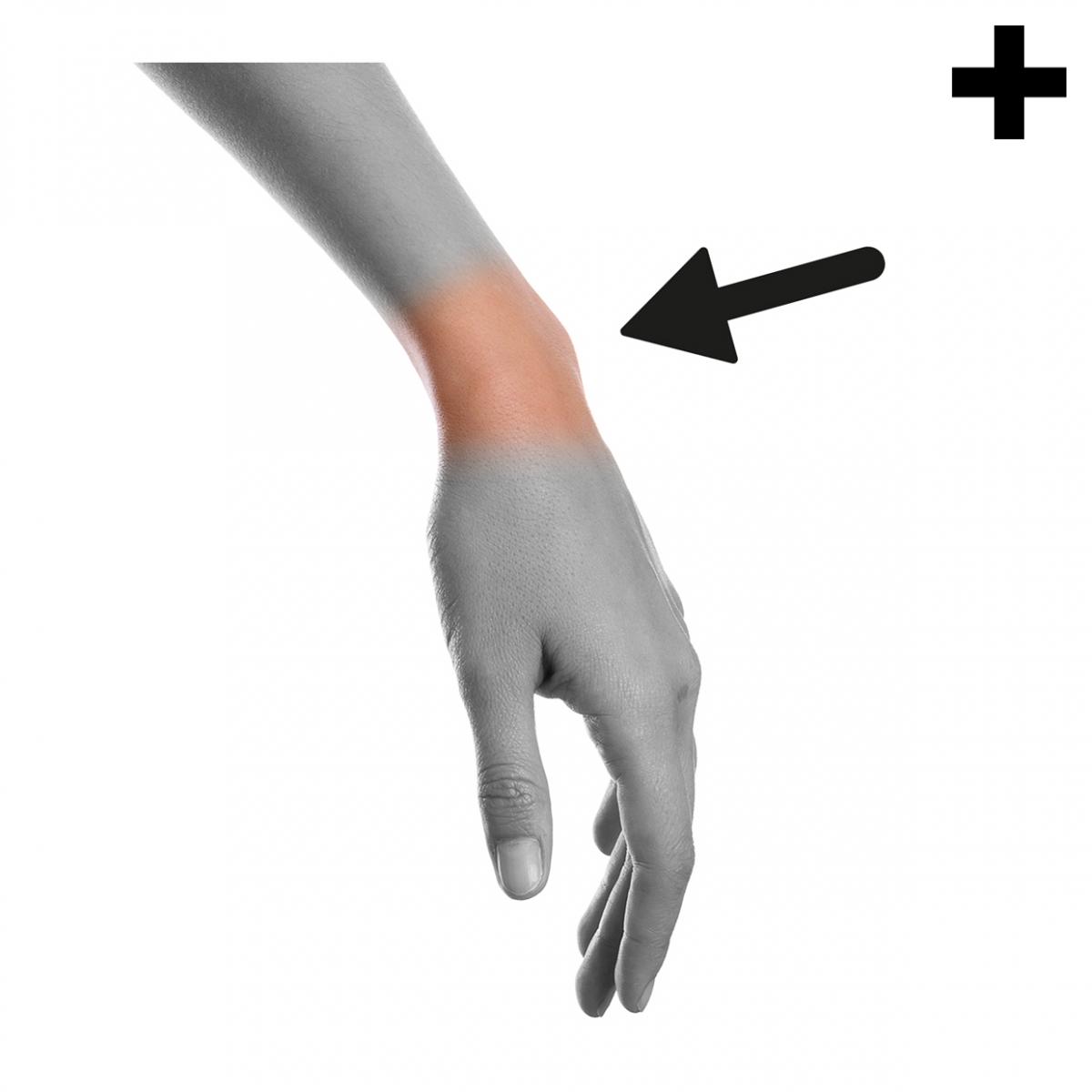 Imagen en la que se ve el plural del concepto muñeca, parte del cuerpo humano