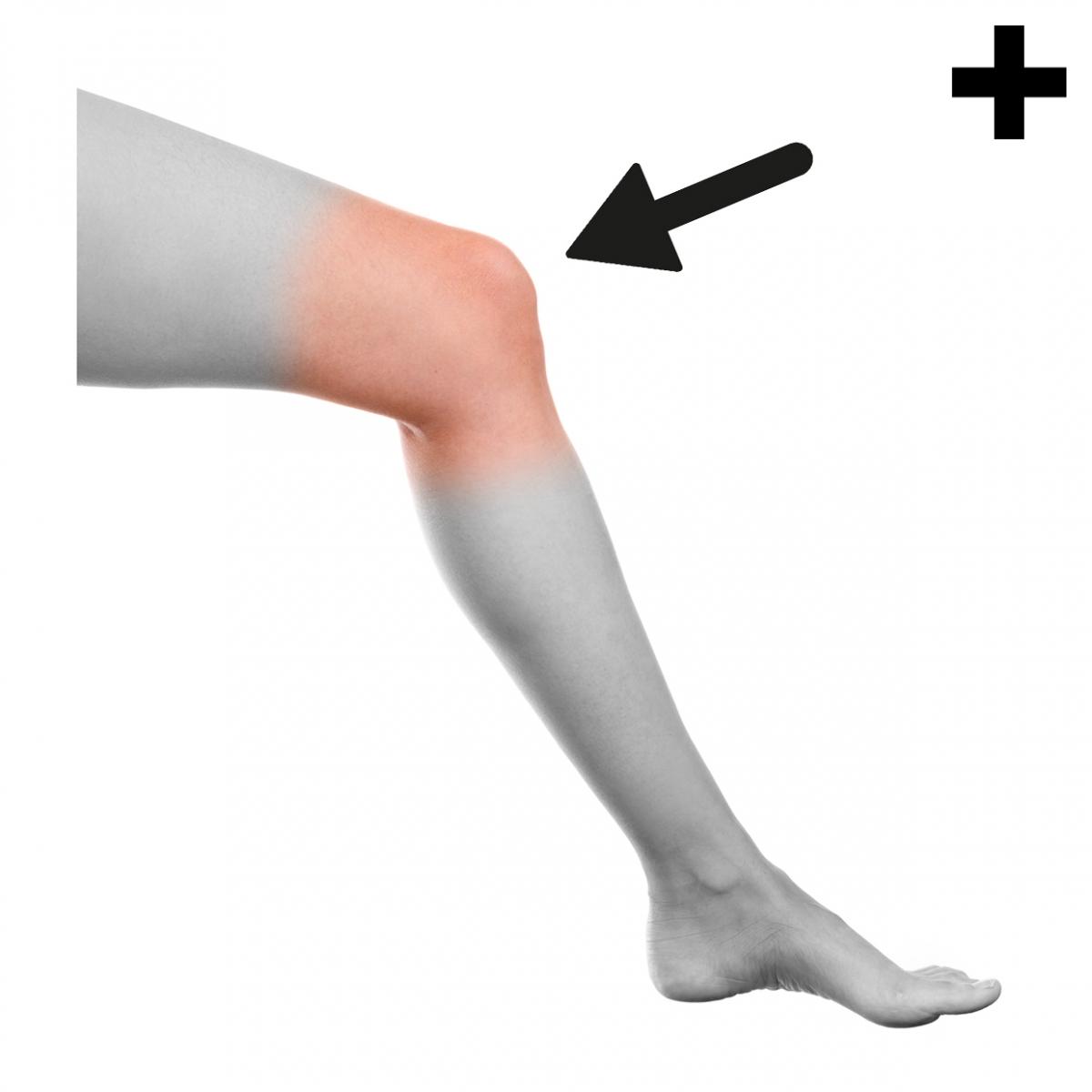Imagen en la que se ve el plural del concepto rodilla