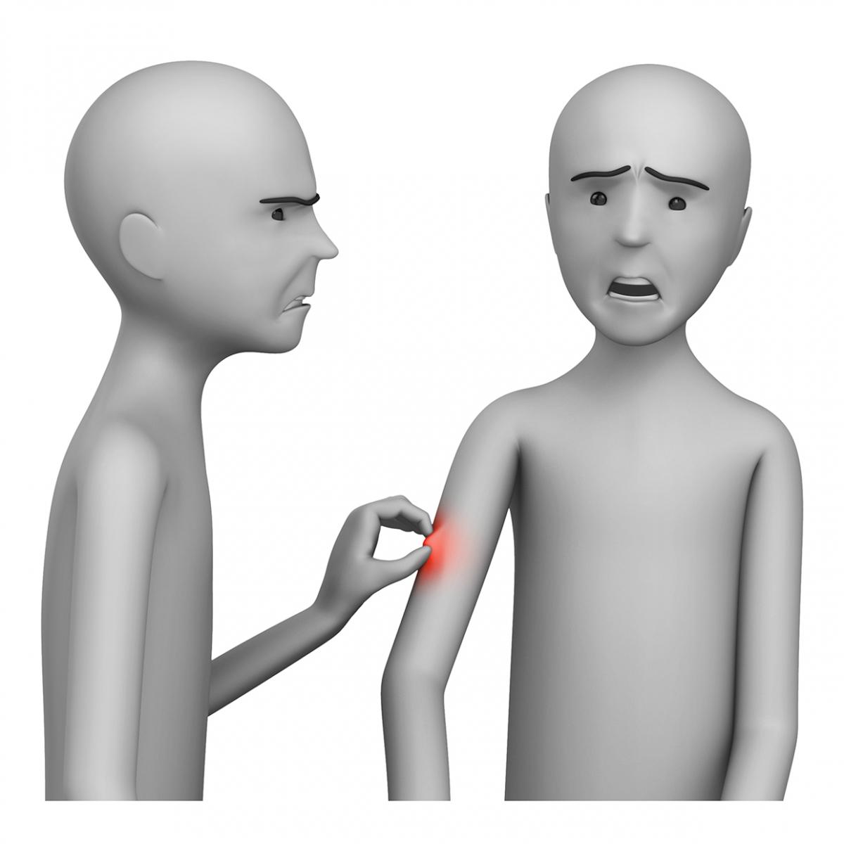 Imagen del verbo pellizcar