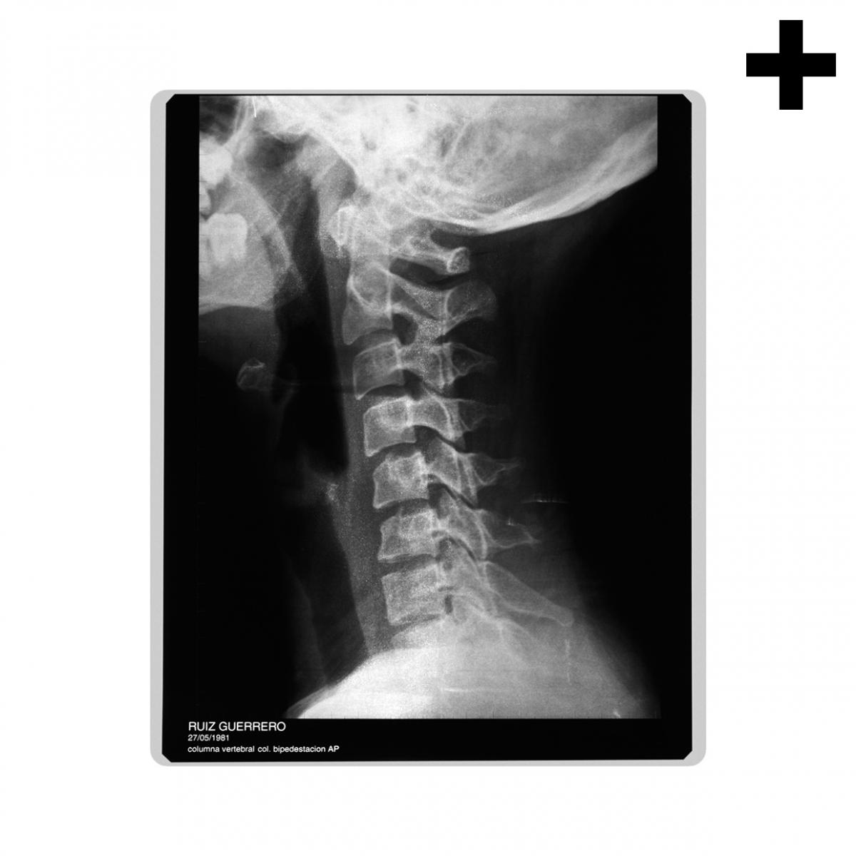 Imagen en la que se ve el plural del concepto radiografía