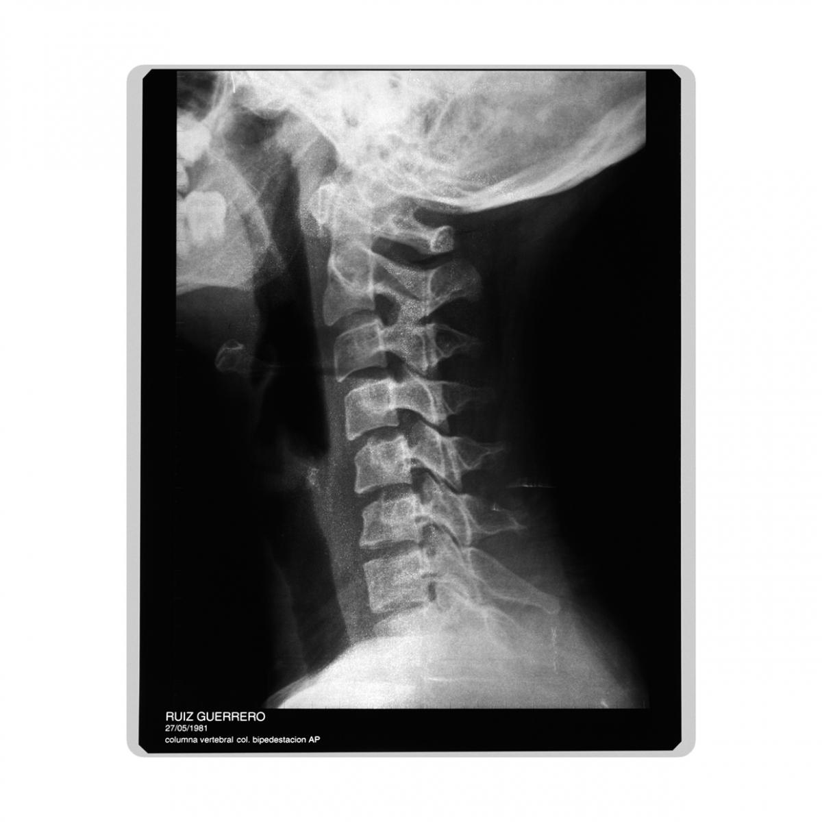 Imagen en la que se ve una radiografía