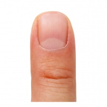 Imagen en la que se ve una uña en un dedo