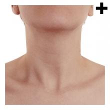 Imagen en la que se ve el plural del concepto cuello de persona