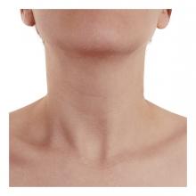 Imagen en la que se ve un cuello de persona