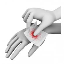 Imagen de una mano curando una herida a otra