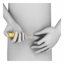 Imagen en la que se ve una persona inyectándose insulina en el abdomen